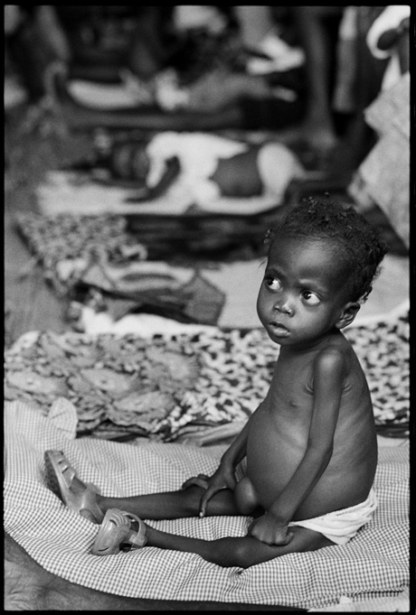 Luanda, on the way to Caxito a malnourished child is seen into a feeding center   - © Giulio Napolitano