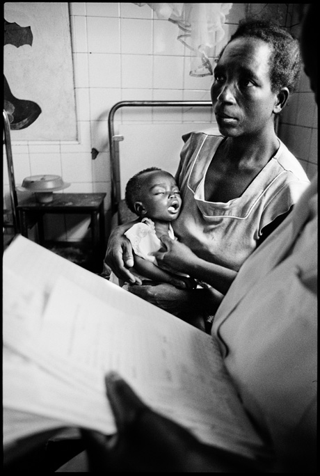 Muatchimbo, Moxico Region, a malnourished child is treated in a Doctors Without Borders center - © Giulio Napolitano