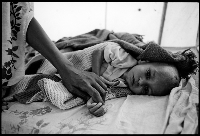 A child infected by tuberculosis, field hospital, Afabet refugee camp - © Giulio Napolitano
